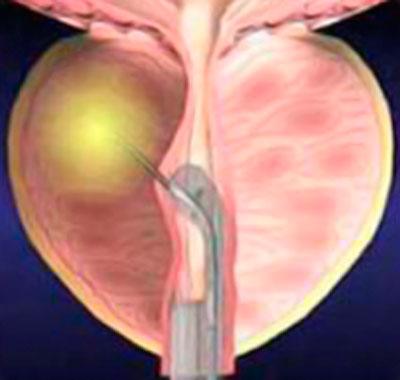 Prostatitis kezelése Malysheva- val A prosztatitis korai szakaszában
